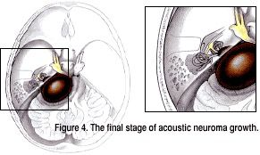 Final Stage of Acoustic Neuroma Growth